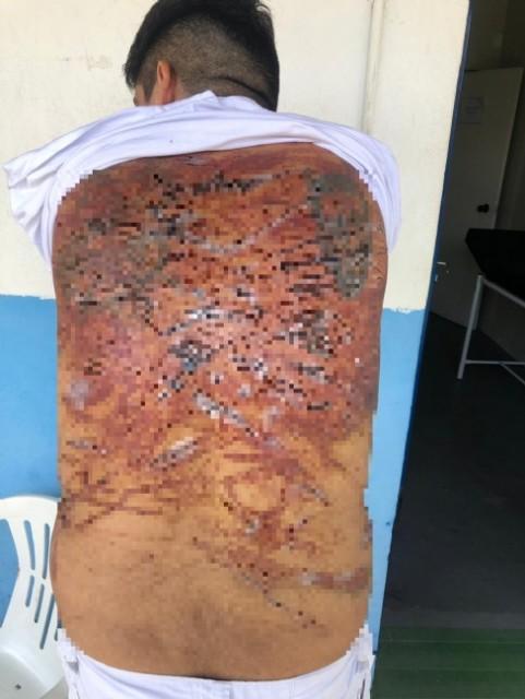 Presos ficam com costas 'em carne viva' após levarem 'salve' de facção dentro da PCE